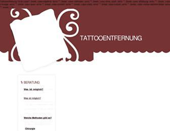 263f90fa763d99bb763fea443cf0def4b3bc366e.jpg?uri=tattoo-entfernung-ohne-laser