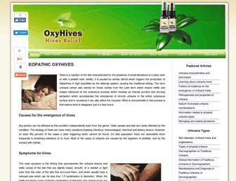 2b40fb16ce06ed8289b97d45b85c680ae6280498.jpg?uri=oxyhives