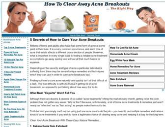 37affac4dc935ae833ec85b98fd71ea45298d93b.jpg?uri=how-to-clear-acne