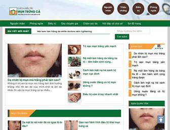 cachdieutrimuntrungca.com screenshot