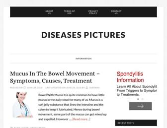 55a9f98a79bfc2285eaddb8dce55c6ef4698538a.jpg?uri=diseasespictures