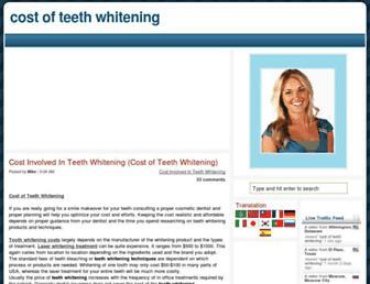 632b05d266fbb56e866ce874e869731aefd8f180.jpg?uri=cost-of-teeth-whitening.blogspot