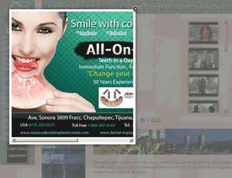 6bb4d08f2e90edea0176dfbcdbc571b042fb0a5c.jpg?uri=dental-implants-center