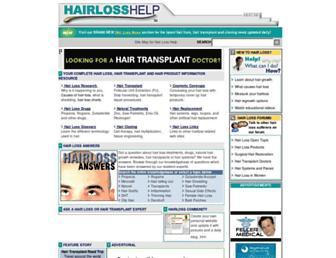 752a16b1d1727ed49c78676f4424ce68f64d4438.jpg?uri=hairlosshelp