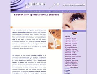 9d6e1ebd7a937226041255b78b4f9ba5d922b0b0.jpg?uri=epilation-laser-definitive