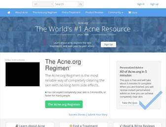 Ab41e67bcdc585292835a9427251e2704a78b1ed.jpg?uri=acne