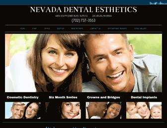 E0ec13b15a5d3f068c6aa6b6fb06a8a8b9d3d723.jpg?uri=lasvegas-cosmetic-dentistry